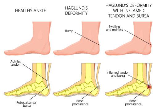 La maladie de Haglund, Comment la traiter ?